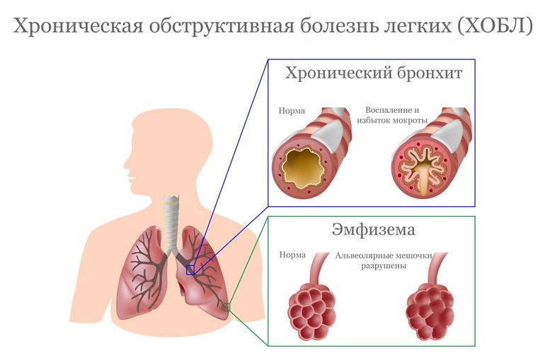 Симптомы ХОБЛ - как вовремя заметить хроническую обструктивную болезнь легких