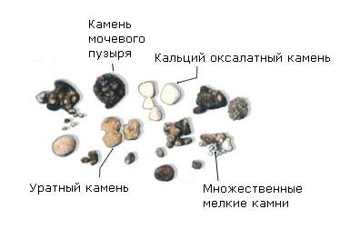 Виды камней при мочекаменной болезни