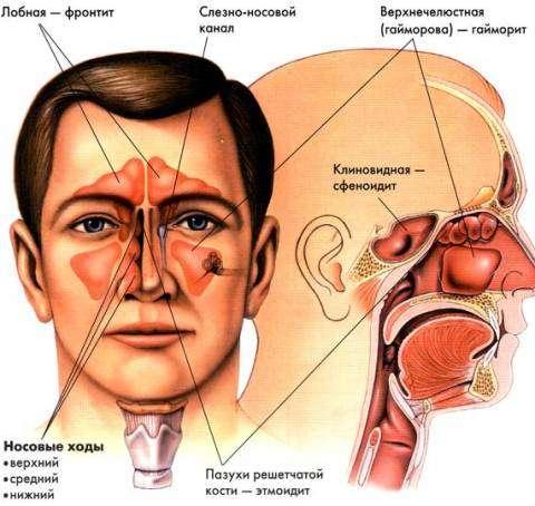 Фронтит - виды фронтита и симптомы