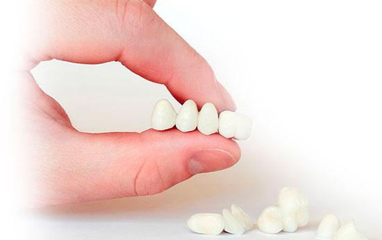 Список документов для получения разрешения на льготное или бесплатное протезирование зубов