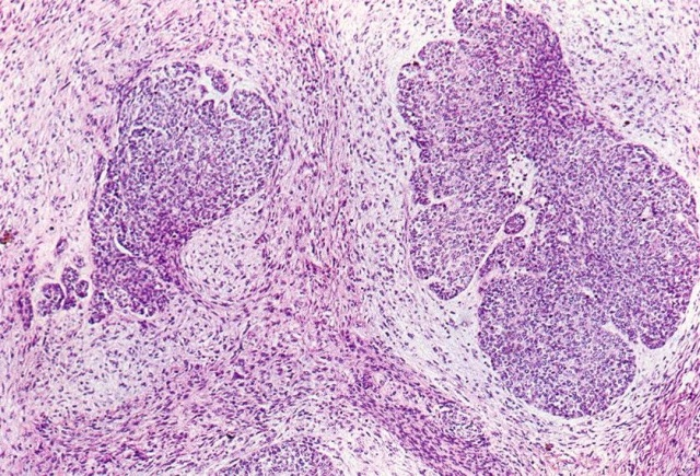 Крупноклеточный нейроэндокринный рак