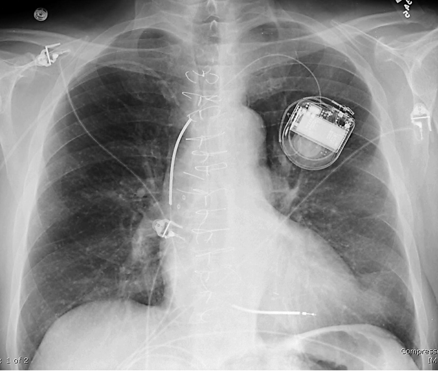 Рентгеновский снимок после установки автоматического кардиовертера-дефибриллятора