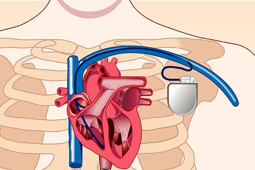 Показания к имплантации ИКД – этапы операции по установке автоматического кардиовертера-дефибриллятора