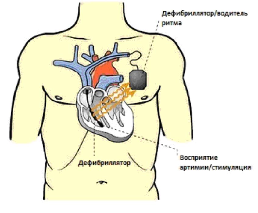 Принцип действия автоматического кардиовертера-дефибриллятора