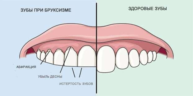 Причины и последствия бруксизма - как избавиться от привычки скрежетать зубами?