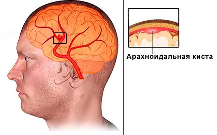 Арахноидальная киста ГМ - причины и симптомы