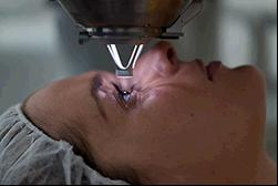 Рейтинг клиниг для лечения глаз в России - как выбрать правильно?