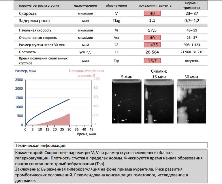 Расшифровка результатов теста Тромбодинамика - анализ беременной женщины, 13 недель