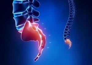Боль в копчике - все причины и симптомы кокцигодинии