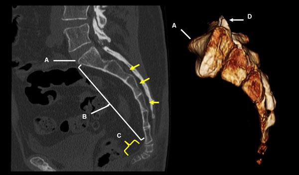 Диагностика переломов крестца, признаки и симптомы травм
