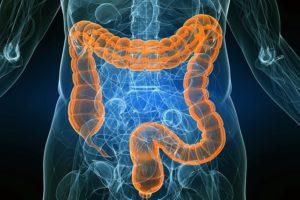 Скрининг колоректального рака – как проводится и кому необходим тест на рак прямой и толстой кишки?