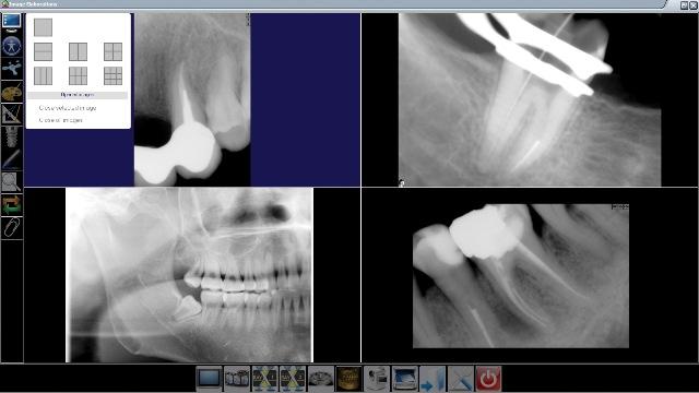 Снимок с визиографа стоматологического
