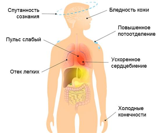 Симптомы и признаки кардиогенного шока