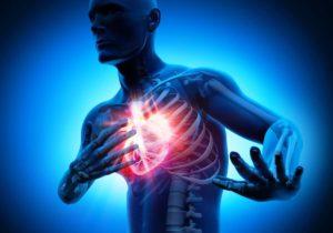 Что делать при признаках кардиогенного шока?