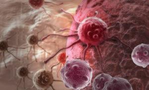 Показания к скринингу на онкологию у мужчин и женщин, цена в клиниках России