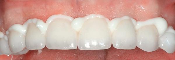 Стеклоиономерный цемент для фиксации коронок и несъемных зубных протезов