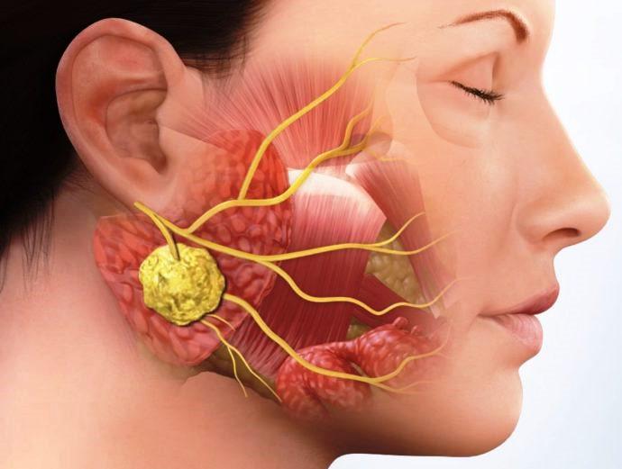 Причины и симптомы флегмоны