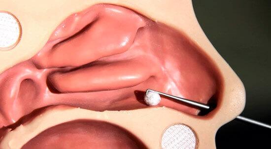 Извлечение инородных тел из носа