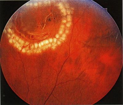 Барьерная лазерная коагуляция сетчатки глаза