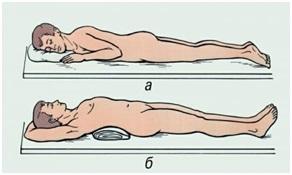 Лечение переломов крестца
