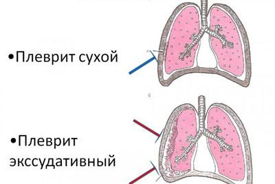 Сухой и экссудативный плевриты - разница в показателях перкуссии