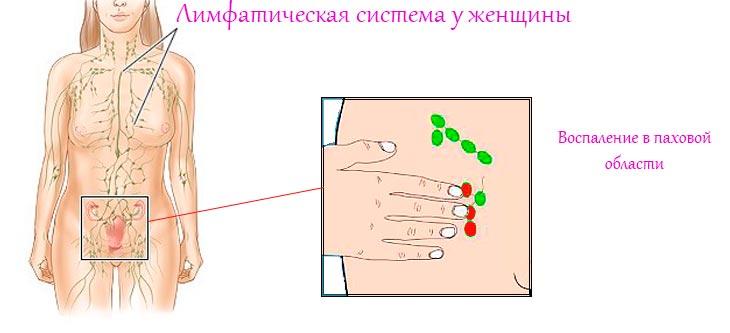 Увеличение паховых лимфоузлов у женщин