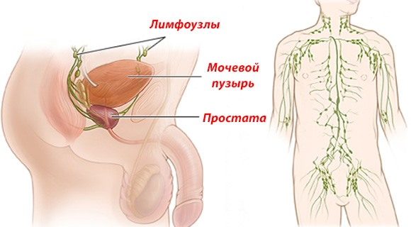 Увеличение лимфоузлов в паху у мужчин - причины