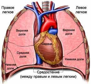 Виды злокачественных опухолей средостения