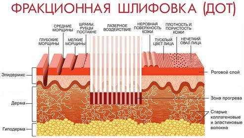 DOT, или дермальный оптический термолиз для подтяжки век