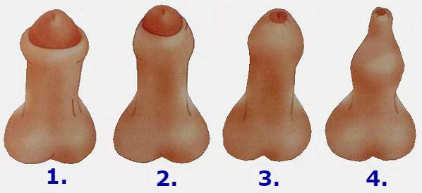Признаки фимоза у взрослых мужчин - стадии патологии