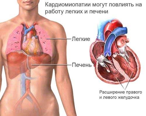 Признаки и симптомы миокардиопатии