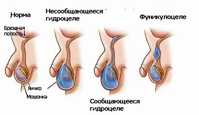 Гидроцеле у мальчиков - причины  водянки оболочек яичка и эффективное лечение