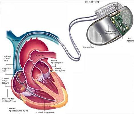 Имплантация электрокардиостимулятора