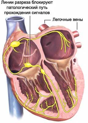 Лабиринт (операция на сердце)