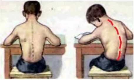 Сколиотическая осанка и сколиоз у ребенка - причины