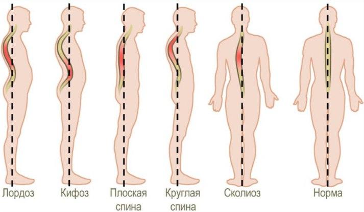Виды сколиотической деформации позвоночника