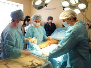 Операции при лимфостазе