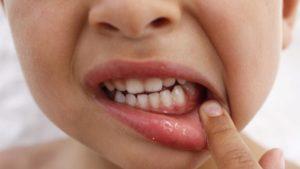 Стоматит во рту у ребенка