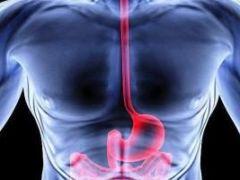 Стриктура, или сужение пищевода - причины, симптомы, лечение
