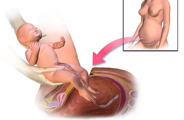 Кесарево сечение: плановое или экстренное - показания