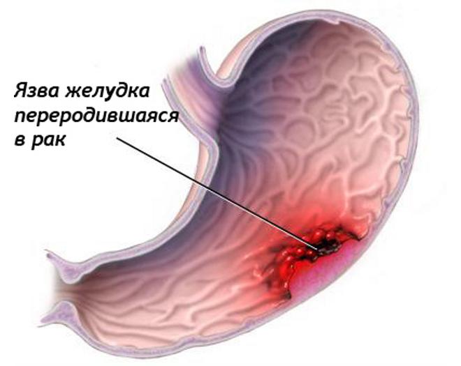 Малигнизация язвы желудка