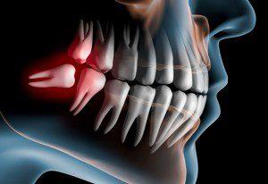 Бывает ли рак зуба - причины и симптомы