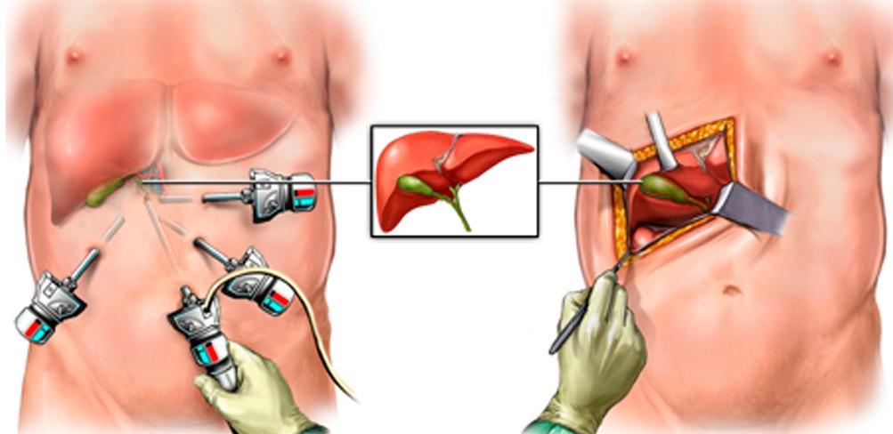 Операция на желчном пузыре - открытая и лапароскопическим методом