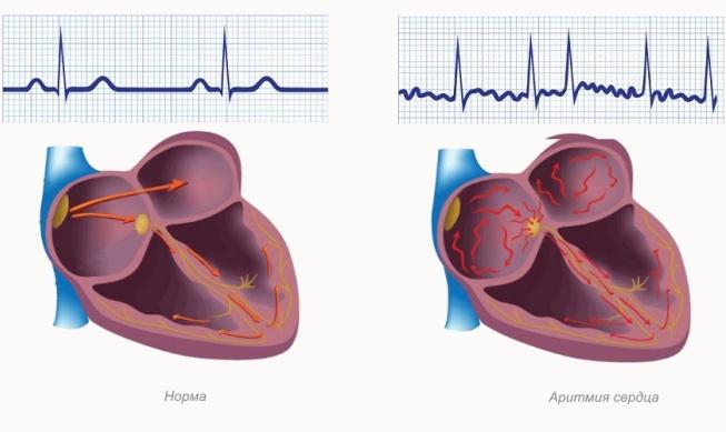 Виды аритмий сердца у детей