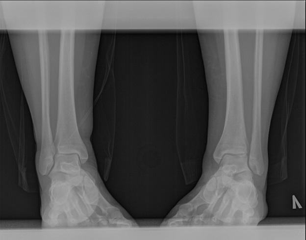 Травма межберцового синдесмоза