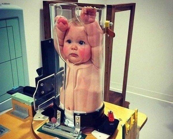 Можно ли делать рентген детям