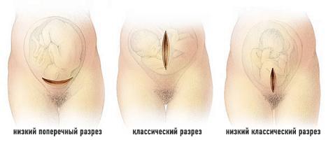 Разрез при кесаревом сечении