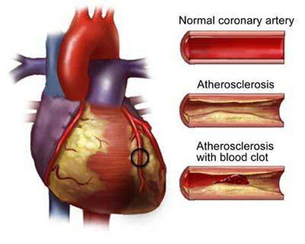 Коронарное шунтирование сердца