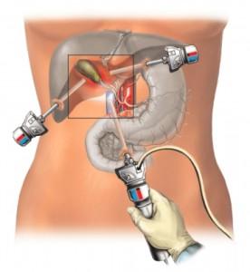 gallbladder-ops-02