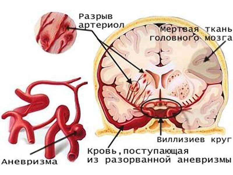 0008-014-TSentralnaja-nervnaja-sistema-preterpevaet-grubye-destruktivnye
